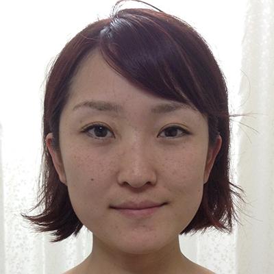 美容鍼灸を受けられて効果を感じていただきました