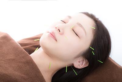 VIVACE鍼灸院の美容鍼灸